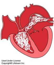HeartwormPrevention